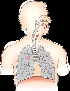 סרטן הריאות- התסמינים